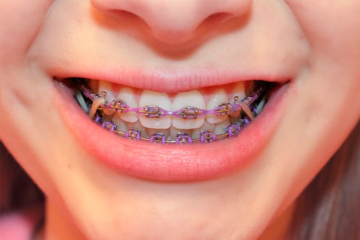 Elastics For Braces Rubber Bands In Orthodontics