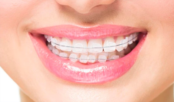 Getting braces abroad, is it worth it?