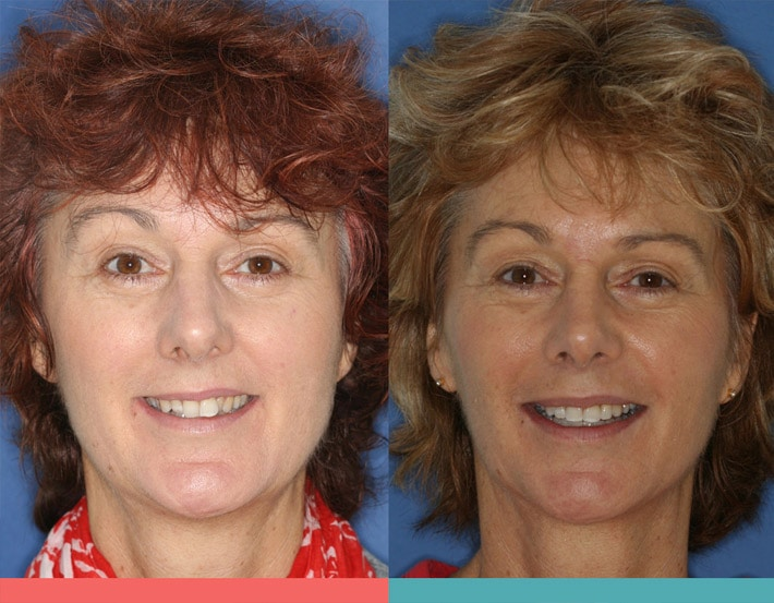 Braces And Changes In Facial Shape and Appearance — Before and After