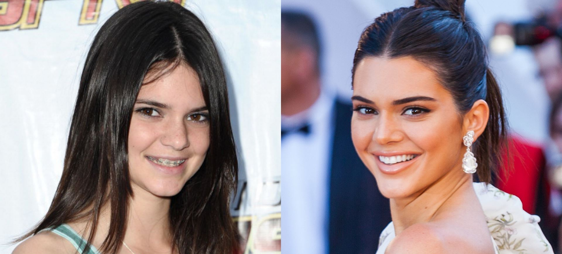 Dental Braces Before and After Pictures in Atlanta