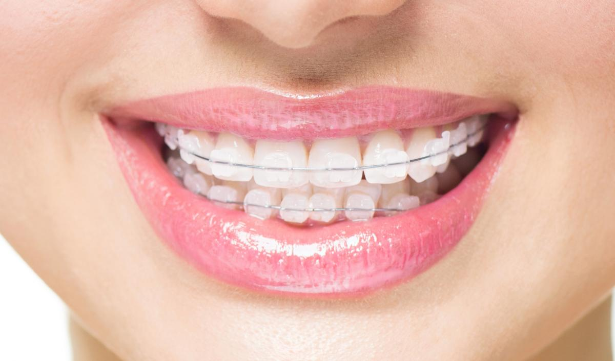 How Can I Straighten My Teeth? Straightening Options And Methods