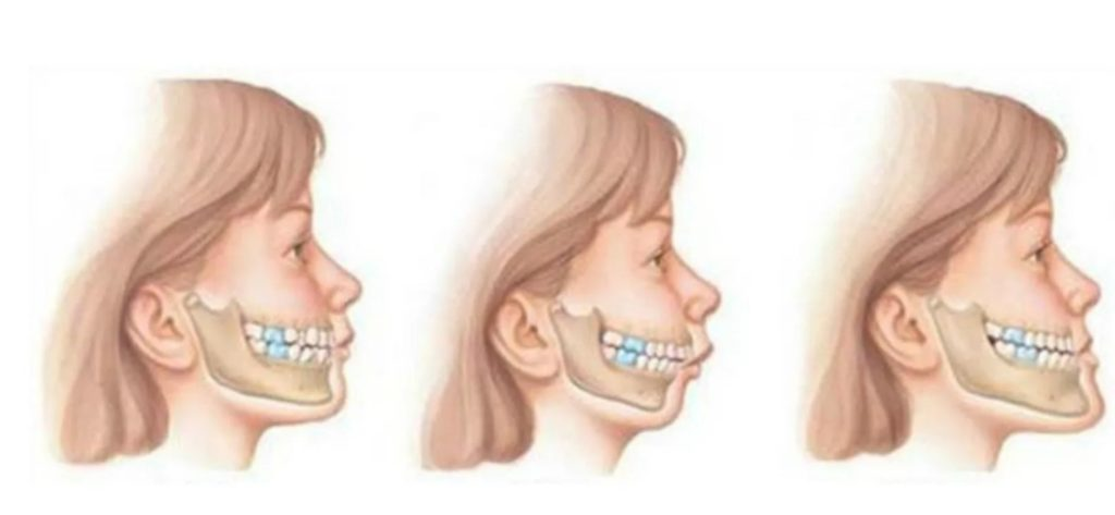 how to treat malocclusion