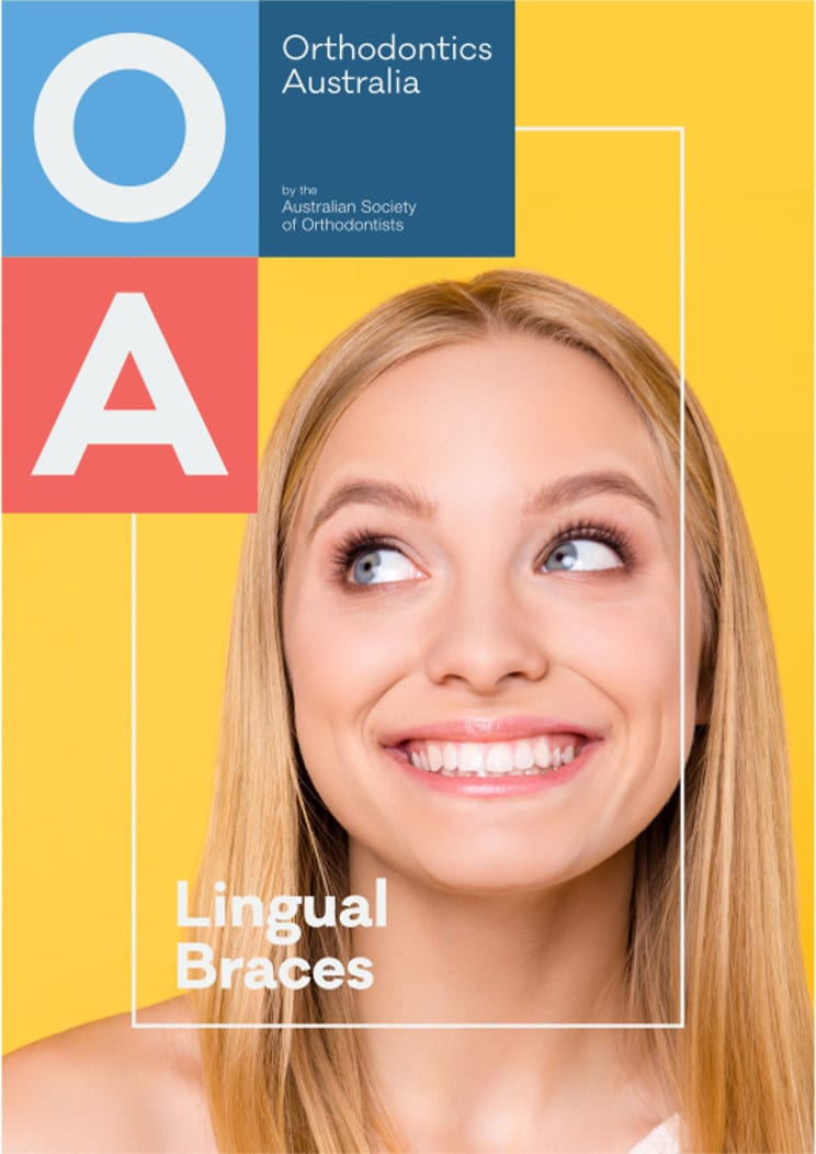 Guide-to-lingual-braces.jpg