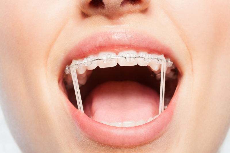 Elastics For Braces Rubber Bands In Orthodontics