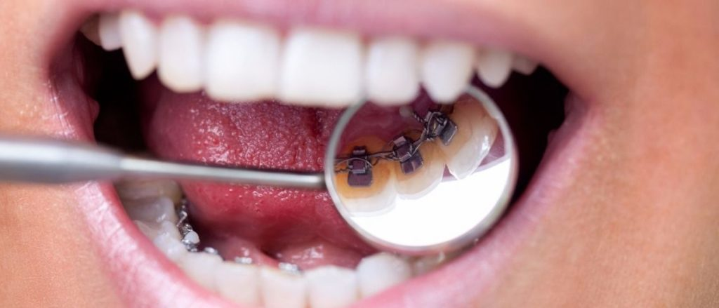 What are the benefits of a fixed retainer?