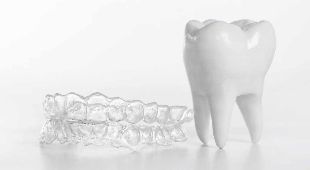 Dental Crowding: Causes and Treatment Options