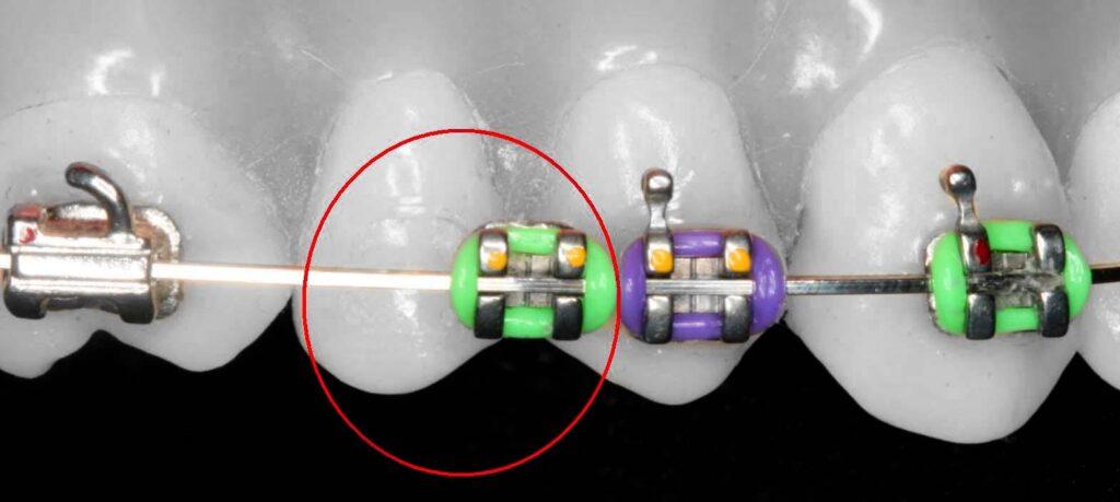 braces bracket popped off