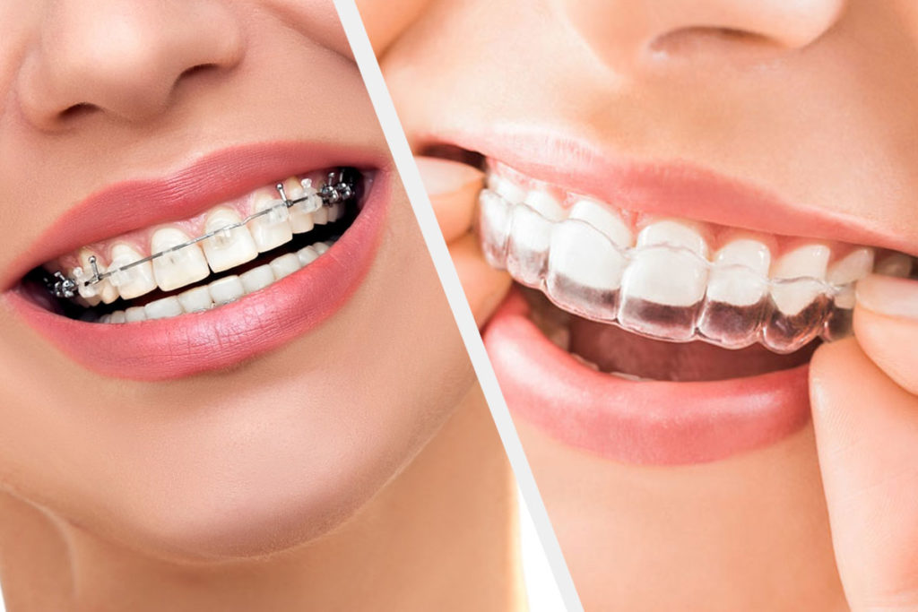 Traditional Braces vs Clear Aligners like Invisalign