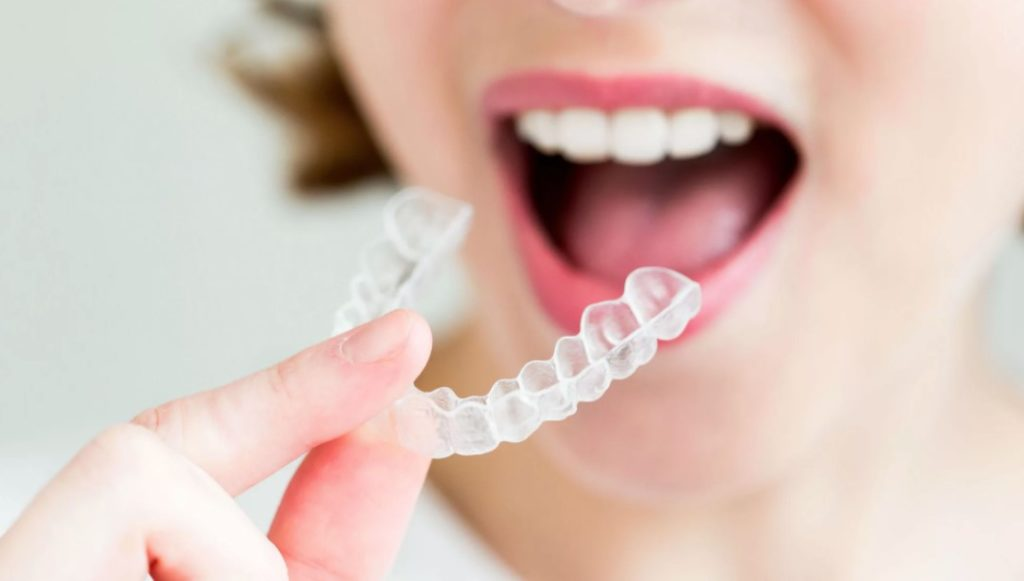 How to clean and take care of your clear aligners